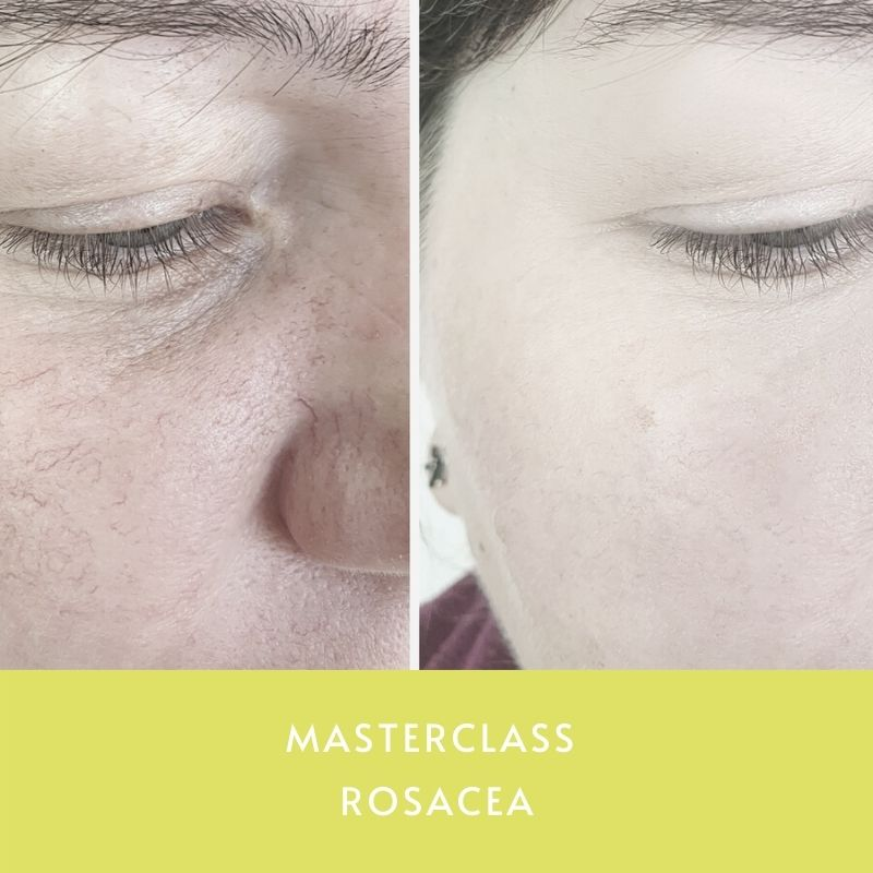 Masterclass Rosacea