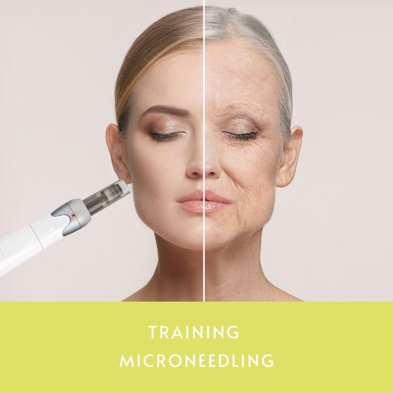 Training MICRONEEDLING